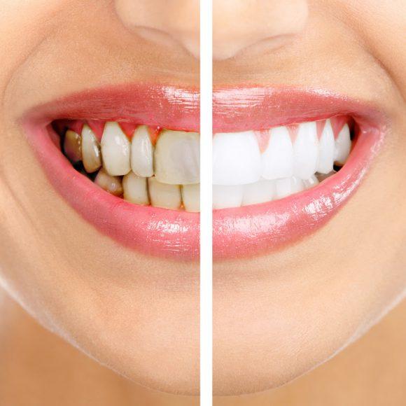denti-bianchi-trattamento