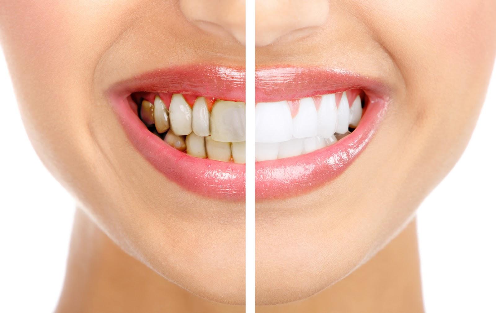 Sbiancamento ed estetica dentale