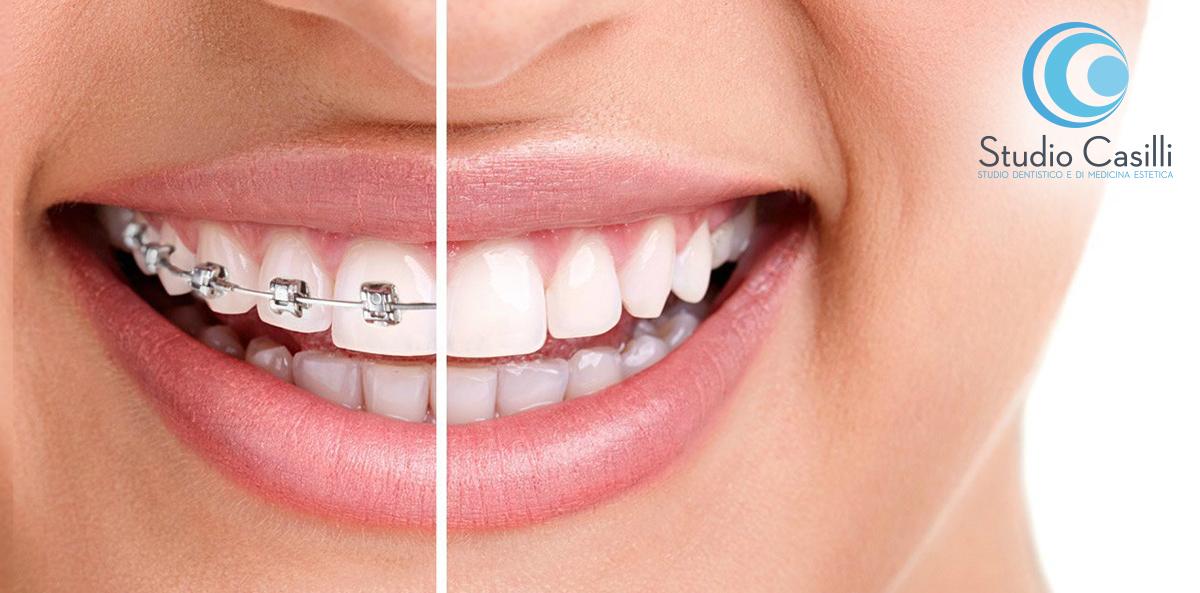 Ortodonzia – Apparecchi per denti