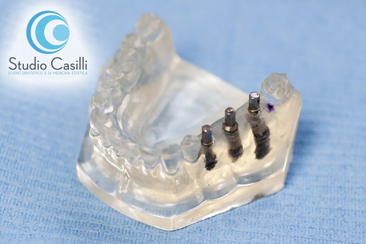 Implantologia – Impianti Dentali