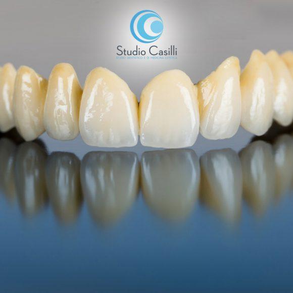 protesi-dentale-messina