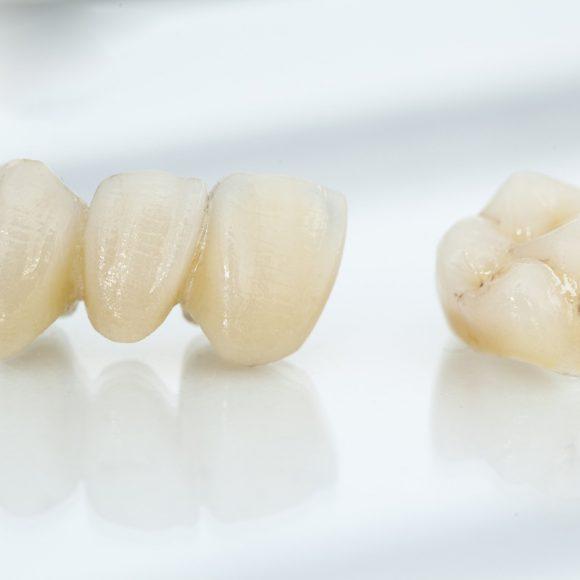 protesi-denti