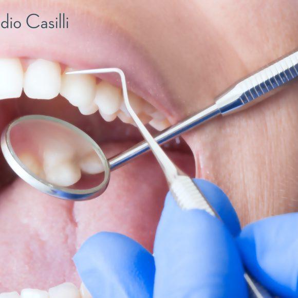 Cura Carie Dentali